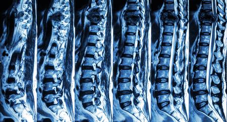 medula espinal: Resonancia magn�tica de columna lumbar y tor�cica: mostrar la fractura de columna tor�cica y comprimir la m�dula espinal (mielopat�a) Foto de archivo