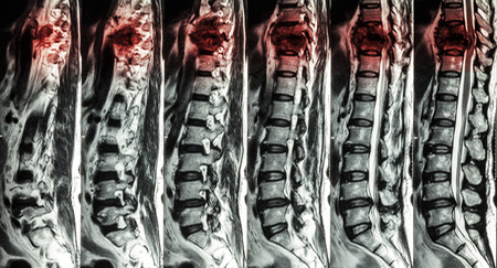 cords: MRI of Lumbar & Thoracic spine : show fracture of thoracic spine and compress spinal cord ( Myelopathy )