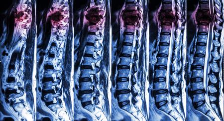 medula espinal: Resonancia magnética de columna lumbar y torácica: mostrar la fractura de columna torácica y comprimir la médula espinal (mielopatía) Foto de archivo