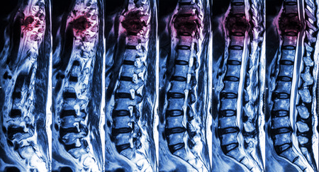 colonna vertebrale: Risonanza magnetica della colonna vertebrale lombare e toracica: mostrare frattura della colonna vertebrale toracica e comprimere il midollo spinale (Mielopatia) Archivio Fotografico