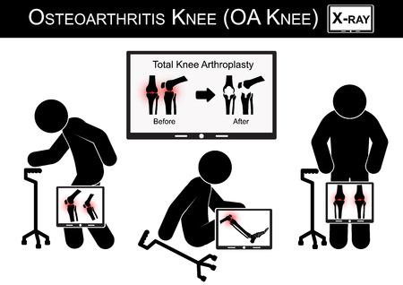 artrosis: Dolor Viejo hombre en su rodilla, Monitor de programa de imagen de la artroplastia total de rodilla (antes y después del tratamiento quirúrgico) vectores de rodilla La osteoartritis (diseño plano) (concepto de cuidado de la salud)