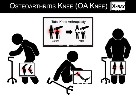 arthritis pain: Old man pain at his knee , Monitor show image of Total knee arthroplasty ( before and after surgical treatment ) Osteoarthritis knee vector ( flat design ) ( Health care concept )