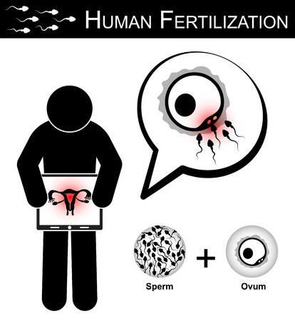 sex cell: Human Fertilization ( Stick woman hold monitor screen and show imaging of uterus ) , Fertility concept ( sperm cells race to fertilize with ovum ) ( Woman Health Care )