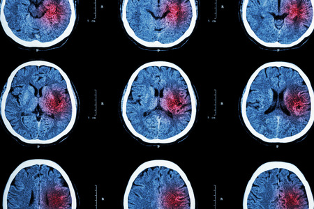 CT scan of brain with red area  Stockfoto
