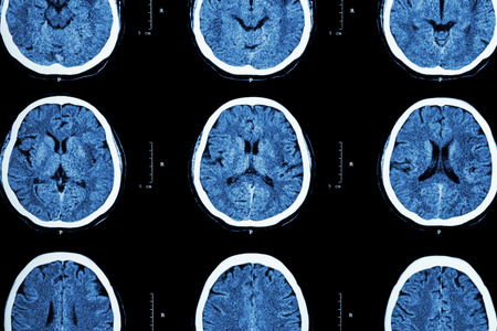 CT scan of brain show normal brain Stock Photo - 41083563