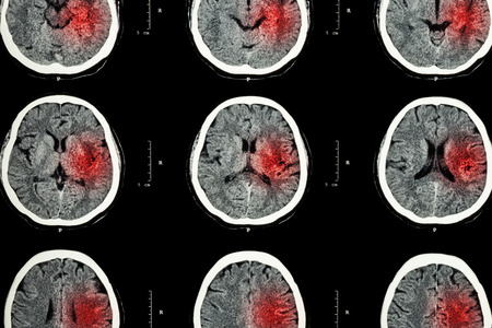 infarction: CT scan of brain with red area ( Imaging for hemorrhagic stroke or Ischemic stroke ( infarction ) concept ) Stock Photo