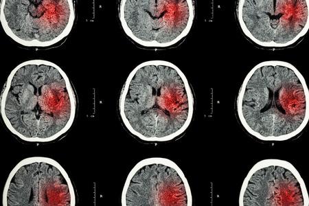 cerebro blanco y negro: Tomograf�a computarizada del cerebro con �rea roja (Imaging para el accidente cerebrovascular hemorr�gico o ictus isqu�mico (infarto) concepto)