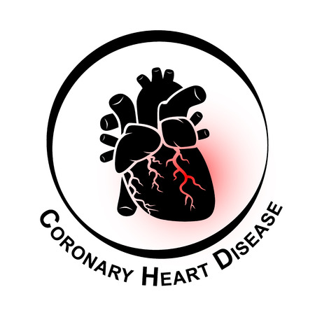 heart organ: Coronary Heart Disease Symbol ( Ischemic heart disease , Myocardial infraction ) red area at coronary artery ( Thrombus occlude in coronary artery ) Illustration