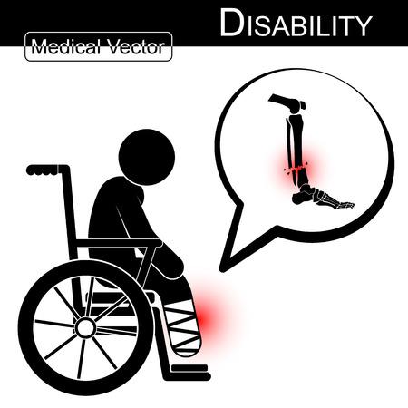 persona en silla de ruedas: Vector hombre del palillo con fractura de pierna en silla de ruedas y la burbuja de texto (Discapacidad, el concepto de Fisioterapia) (Diseño plano) (Tibia y peroné de la fractura) Vectores