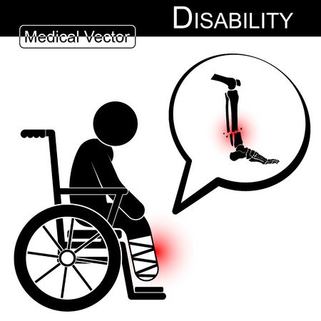 infirmity: Vector Stick man with leg fracture on wheelchair and text bubble ( Disability , Physical Therapy concept ) ( Flat design ) ( Tibia and Fibular fracture ) Illustration