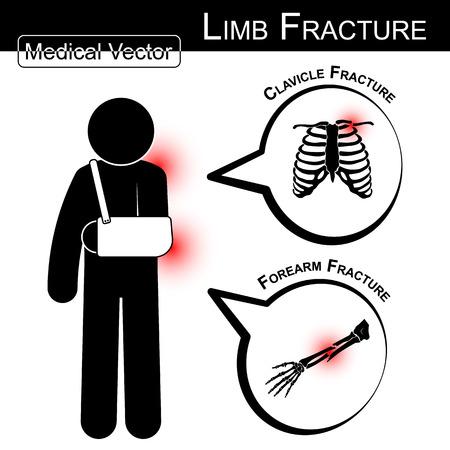 hombros: Pegue hombre con armsling (clavícula y el antebrazo fractura) y la burbuja de texto (Médico, Salud, Salud vector)