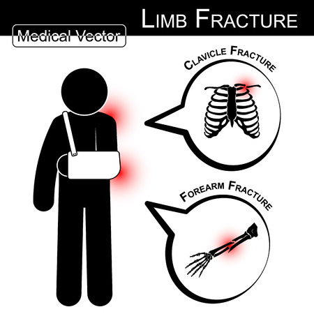 cast: Stick man with armsling ( clavicle and forearm fracture ) and text bubble  ( Medical , Health , Healthcare vector )
