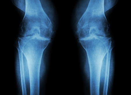 human knee: Osteoarthritis Knee ( OA Knee ) ( Film x-ray both knee with arthritis of knee joint : narrow knee joint space ) ( Medical and Science background ) Stock Photo