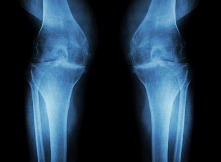 de rodillas: Rodilla La osteoartritis (OA de la rodilla) (radiografía de cine tanto rodilla con artritis de la articulación de la rodilla: la rodilla espacio articular estrecho) (Medicina y Ciencia de fondo)