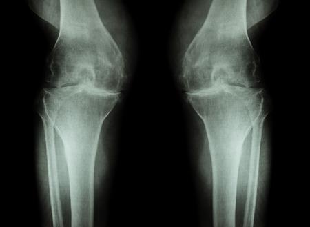 artrosis: Rodilla La osteoartritis (OA de la rodilla) (radiograf�a de cine tanto rodilla con artritis de la articulaci�n de la rodilla: la rodilla espacio articular estrecho) (Medicina y Ciencia de fondo)