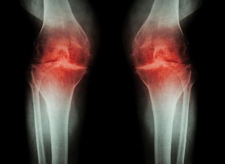 osteoarthritis: Rodilla La osteoartritis (OA de la rodilla) (radiograf�a de cine tanto rodilla con artritis de la articulaci�n de la rodilla: la rodilla espacio articular estrecho) (Medicina y Ciencia de fondo)