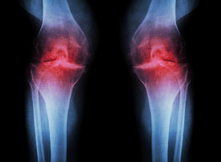Osteoarthritis Knee ( OA Knee ) ( Film x-ray both knee with arthritis of knee joint : narrow knee joint space ) ( Medical and Science background ) 版權商用圖片
