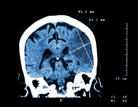 computer tomography: Cerebral infarction at left hemisphere ( Ischemic stroke ) ( CT-scan of brain ) : Medicine and Science background