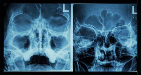 ethmoid: Film x-ray paranasal sinus show frontal sinus , maxillary sinus , ethmoid sinus