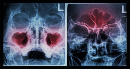 Film X-ray paranasal sinus : show sinusitis at maxillary sinus ( left image ) , frontal sinus ( right image )