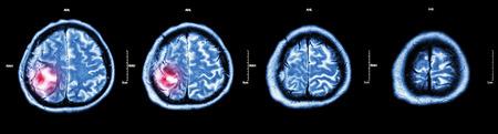 brain disease: Brain tumor  ( Film CT-scan of brain : show part of brain with tumor )