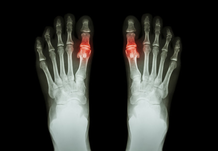 Gout , Rheumatoid arthritis ( Film x-ray both foot and arthritis at first metatarsophalangeal joint ) ( Medicine and Science background )
