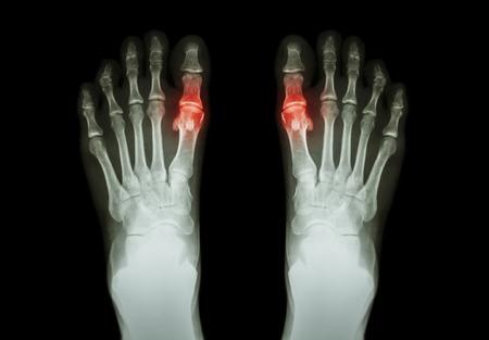 Jicht, reumatoïde artritis (X-ray film, zowel te voet en artritis in eerste instantie metatarsofalangeale gewricht) (Geneeskunde en Wetenschap achtergrond) Stockfoto - 44426662