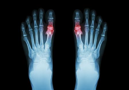 Jicht, reumatoïde artritis (X-ray film, zowel te voet en artritis in eerste instantie metatarsofalangeale gewricht) (Geneeskunde en Wetenschap achtergrond) Stockfoto - 44426668