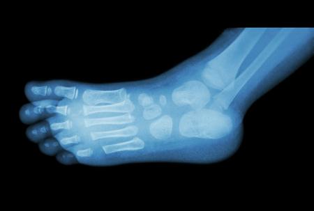 pies: película de radiografía de pie (vista lateral) 's hijo (lateral) Foto de archivo