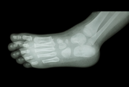child s: film x-ray of child s foot ( side view ) ( lateral )