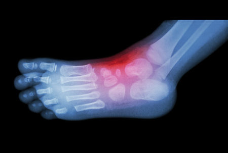 Arthritis and injury at ankle  :  film x-ray of child s foot ( side view ) ( lateral ) Stock Photo