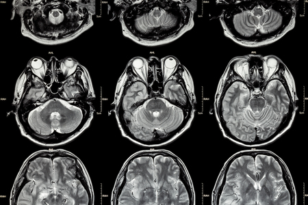 cva: MRI of Brain ( cross section of brain ) ( Medical , Health care , Science background ) Stock Photo