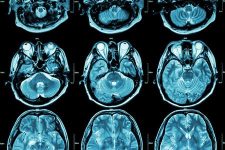 corpo umano: MRI del cervello (sezione trasversale del cervello) (medico, assistenza sanitaria, Scienza sfondo)