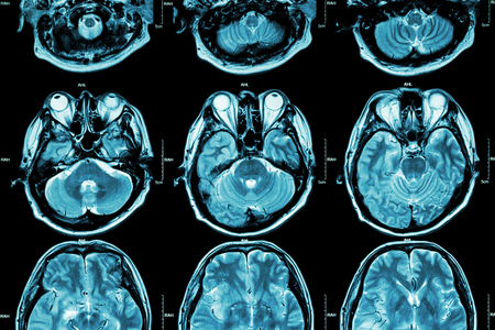 ojo humano: Resonancia magn�tica del cerebro (secci�n transversal del cerebro) (m�dico, cuidado de la Salud, Fondo de la ciencia) Foto de archivo