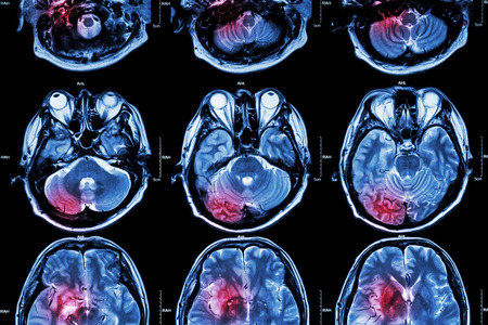 Cine IRM (imágenes por resonancia magnética) del cerebro (accidente cerebrovascular, tumor cerebral, infarto cerebral, hemorragia intracerebral) (médico, cuidado de la Salud, Fondo de Ciencia) (Sección transversal del cerebro) Foto de archivo - 44846103