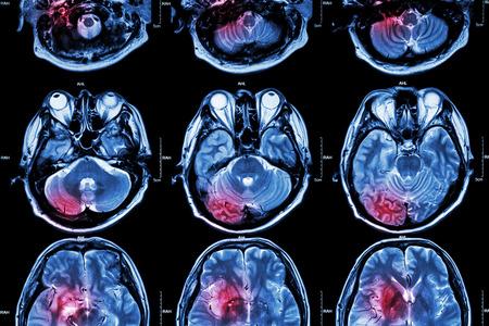 Film MRI ( Magnetic resonance imaging ) of brain ( stroke , brain tumor , cerebral infarction , intracerebral hemorrhage )  ( Medical , Health care , Science Background ) ( Cross section of brain ) Foto de archivo