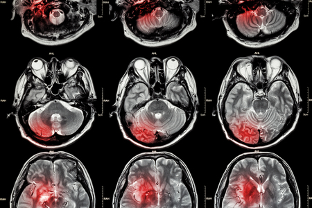 brain health: Film MRI ( Magnetic resonance imaging ) of brain ( stroke , brain tumor , cerebral infarction , intracerebral hemorrhage )  ( Medical , Health care , Science Background ) ( Cross section of brain ) Stock Photo