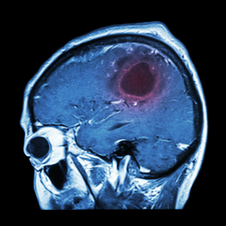 x mass: Film MRI of brain with brain tumor ( Sagittal plane , side view , lateral view ) ( Medical , Health care , Science Background ) Stock Photo