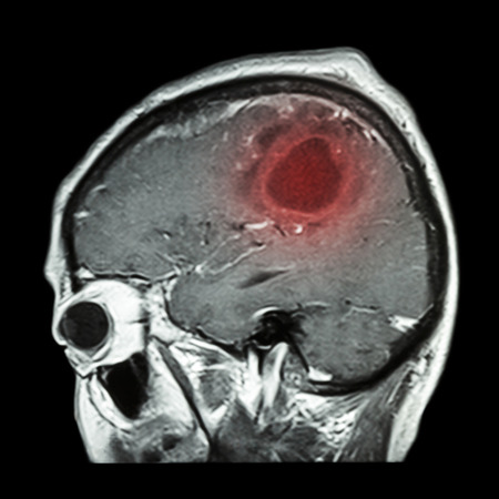 brain cancer: Film MRI of brain with brain tumor ( Sagittal plane , side view , lateral view ) ( Medical , Health care , Science Background ) Stock Photo