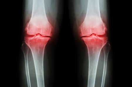 変形性膝関節症の膝 (膝 OA)。X 線フィルム両方の膝 (正面図) 表示狭い共同スペース (関節軟骨の損失)、骨棘、軟骨性硬化症