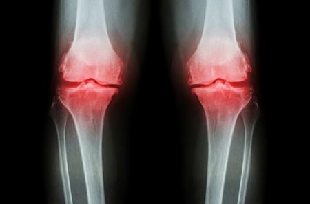 xray: Osteoarthritis Knee ( OA Knee ). Film x-ray both knee ( front view ) show narrow joint space ( joint cartilage loss ) , osteophyte , subchondral sclerosis