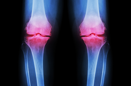 x ray skeleton: Osteoarthritis Knee ( OA Knee ). Film x-ray both knee ( front view ) show narrow joint space ( joint cartilage loss ) , osteophyte , subchondral sclerosis