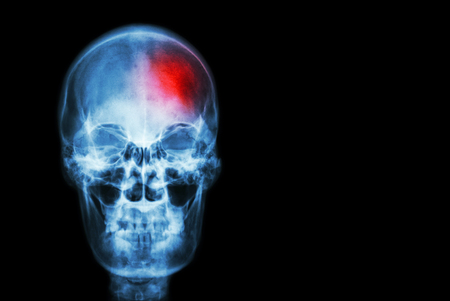 cerebro: Accidente cerebrovascular (accidente cerebrovascular). película cráneo de rayos x de los humanos con la zona roja (Medicina, Ciencia y Salud concepto y de fondo)