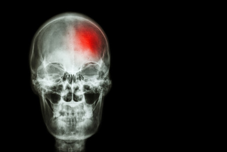 red heads: Stroke ( Cerebrovascular accident ) . film x-ray skull of human with red area ( Medical , Science and Healthcare concept and background ) Stock Photo