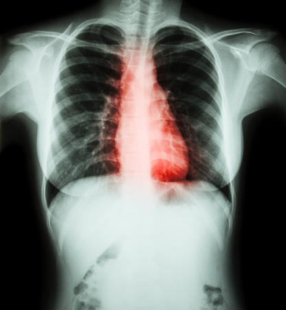 anatomy x ray: Heart disease ( Film chest x-ray of woman with heart disease ) Stock Photo