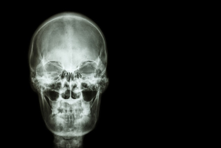neuro: film x-ray skull of human and blank area at right side ( Medical , Science and Healthcare concept and background )