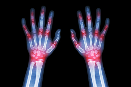 x ray skeleton: Rheumatoid arthritis , Gout arthritis  ( Film x-ray both hands of child with multiple joint arthritis ) ( Medical , Science and Health care concept ) Stock Photo