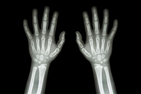 huesos: Película de Rayos X normal de las dos manos de niño Foto de archivo