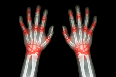 neonatal: Rheumatoid arthritis , Gout arthritis  ( Film x-ray both hands of child with multiple joint arthritis ) ( Medical , Science and Health care concept ) Stock Photo