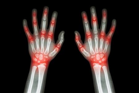 rheumatoid: Rheumatoid arthritis , Gout arthritis  ( Film x-ray both hands of child with multiple joint arthritis ) ( Medical , Science and Health care concept ) Stock Photo